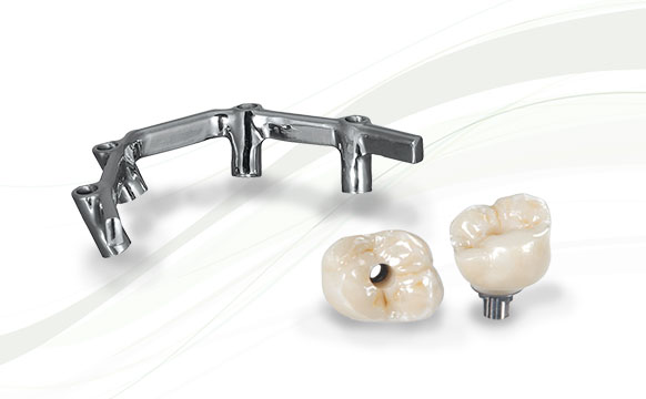 Inclusive Screw-Retained